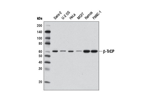 Western blot analysis of extracts from various cell lines using β-TrCP (D12C8) Rabbit mAb.