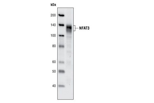 Monoclonal Antibody - NFAT3 (31G6) Rabbit mAb - Immunoprecipitation, Western Blotting, UniProt ID Q14934, Entrez ID 4776 #2188 - Immunology and Inflammation