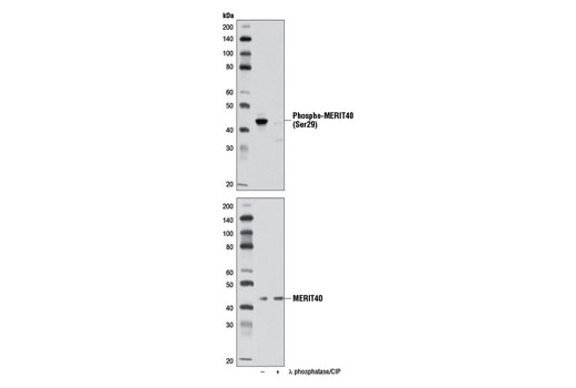 Polyclonal Antibody - Phospho-MERIT40 (Ser29) Antibody - Immunoprecipitation, Western Blotting, UniProt ID Q9NWV8, Entrez ID 29086 #12110, Cell Cycle / Checkpoint Control