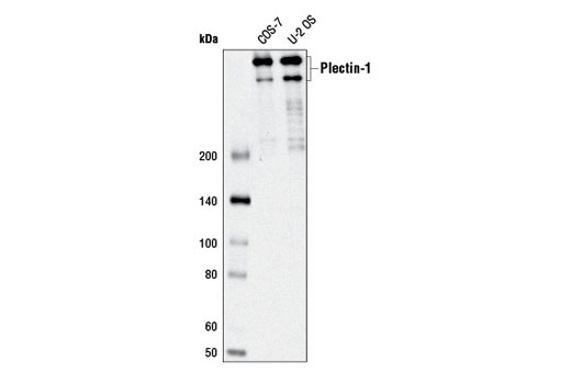 Western blot analysis of extracts from COS-7 and U-2 OS cells using Plectin-1 (D6A11) Rabbit mAb.