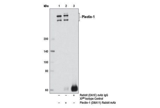 Immunoprecipitation of plectin-1 from U-2 OS cell extracts, using Plectin-1 (D6A11) Rabbit mAb (lane 2) or Rabbit (DA1E) mAb IgG XP<sup>®</sup> Isotype Control #3900 (lane 3). Lane 1 is 10% input. Western blot analysis was performed using Plectin-1 (D6A11) Rabbit mAb.