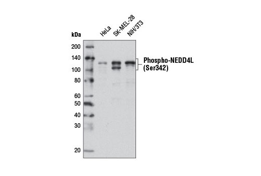 Monoclonal Antibody - Phospho-NEDD4L (Ser342) (D16D6) Rabbit mAb, UniProt ID Q96PU5, Entrez ID 23327 #12146 - Ubiquitin and Ubiquitin-Like Proteins