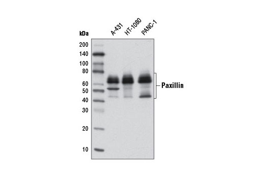 Monoclonal Antibody Immunoprecipitation Activation of MAPK Activity - count 20