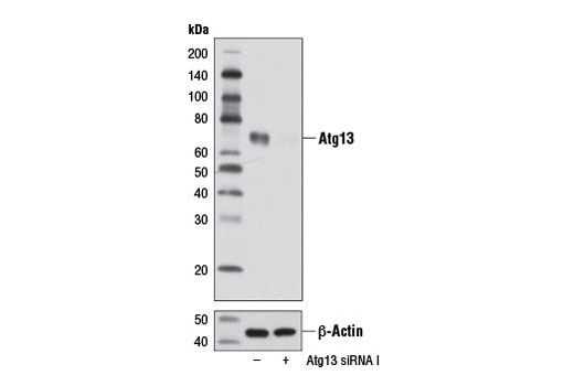 siRNA Transfection Kinase Binding