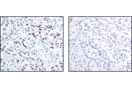 Immunohistochemical analysis of paraffin-embedded human breast carcinoma using HP1 α (C7F11) Rabbit mAb in the presence of control peptide (left) or HP1 alpha blocking peptide #1004 (right).