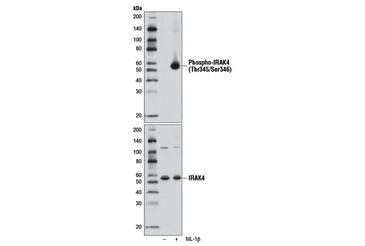 Western blot analysis of serum-starved KARPAS-299 cell extracts, untreated (-) or treated with Human Interleukin-1β (hIL-1β) #8900 (50 ng/ml, 15 min; +), using Phospho-IRAK4 (Thr345/Ser346) (D6D7) Rabbit mAb (upper) or IRAK4 Antibody #4363 (lower). Cell Line Source: Dr Abraham Karpas at the University of Cambridge.