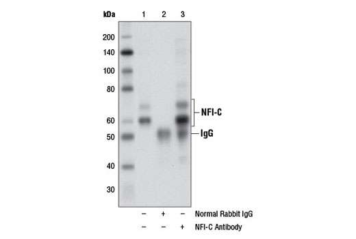 Polyclonal Antibody - NFI-C Antibody - Immunoprecipitation, Western Blotting, UniProt ID P08651, Entrez ID 4782 #11911 - Primary Antibodies