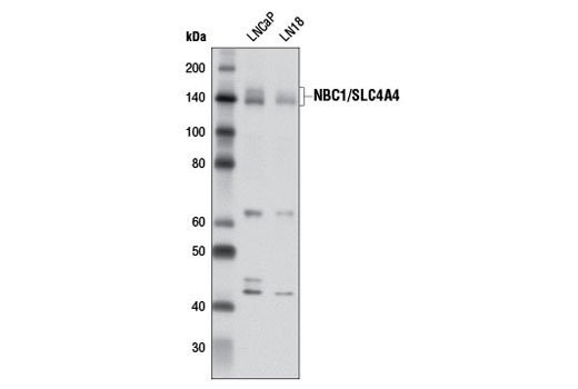Western blot analysis of extracts from LNCaP and LN18 cells using NBC1/SLC4A4 Antibody.
