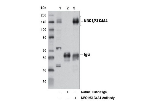 Immunoprecipitation Image 1: NBC1/SLC4A4 Antibody