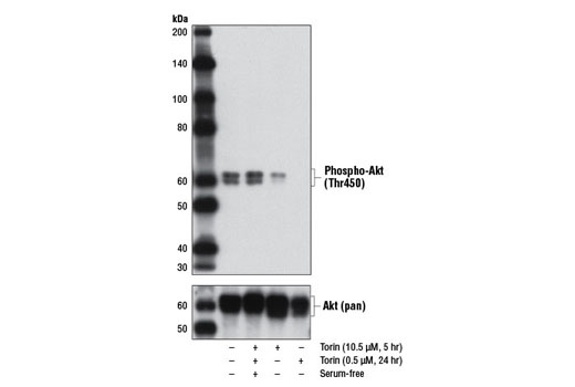 Western blot analysis of extracts from LNCaP cells, untreated, serum-starved, or Torin-treated as indicated, using Phospho-Akt (Thr450) (D5G4) Rabbit mAb (upper) or Akt (pan) (C67E7) Rabbit mAb #4691 (lower).