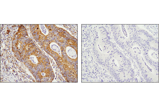 Immunohistochemical analysis of paraffin-embedded human colon carcinoma using SDHA (D6J9M) XP<sup>®</sup> Rabbit mAb in the presence of control peptide (left) or antigen-specific peptide (right).