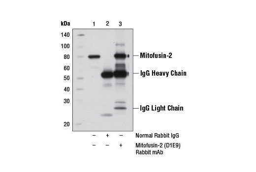 Immunoprecipitation of Mitofusin-2 from PANC-1 cell extracts using Rabbit (DA1E) mAb IgG XP® Isotype Control #3900 (lane 2) or Mitofusin-2 (D1E9) Rabbit mAb (lane 3). Lane 1 is 10% input. Western blot analysis was performed using Mitofusin-2 (D2D10) Rabbit mAb #9482.