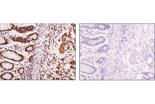 Immunohistochemical analysis of paraffin-embedded human colon carcinoma using HMGA1 (D4F8) Rabbit mAb in the presence of control peptide (left) or antigen-specific peptide (right).