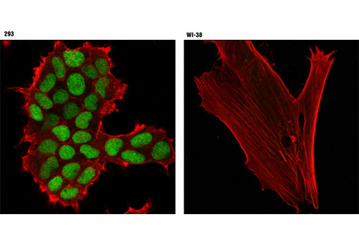 Confocal immunofluorescent analysis of 293 (left) and WI-38 (right) cells using Cdc45 (D7G6) Rabbit mAb (green) and β-Actin (8H10D10) Mouse mAb #3700 (red).