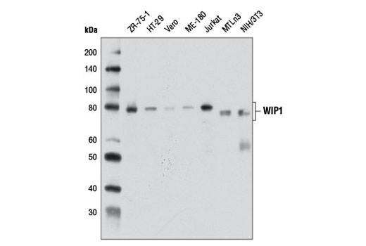 Monoclonal Antibody - WIP1 (D4F7) Rabbit mAb - Western Blotting, UniProt ID O15297, Entrez ID 8493 #11901, Ppm1d