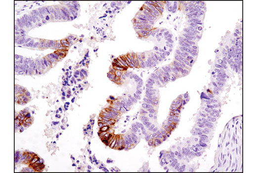 Immunohistochemical analysis of paraffin-embedded human colon carcinoma using Phospho-NDRG1 (Ser330) (D3A12) Rabbit mAb.
