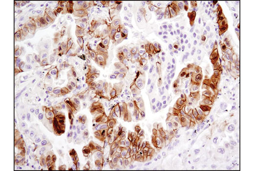 Immunohistochemical analysis of paraffin-embedded human lung carcinoma using Phospho-NDRG1 (Ser330) (D3A12) Rabbit mAb.