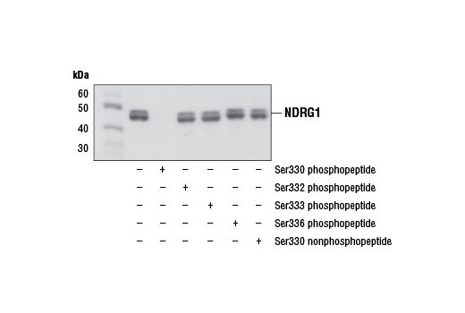 Western blot analysis of extracts from LNCaP cells, serum-starved and insulin-treated, in the absence (-) or presence (+) of NDRG1 derived phospho and nonphosphopeptides using Phospho-NDRG1 (Ser330) (D3A12) Rabbit mAb.