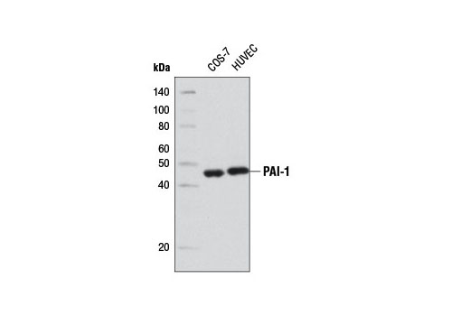 Western blot analysis of extracts from COS-7 and HUVEC cells using PAI-1 (D9C4) Rabbit mAb.