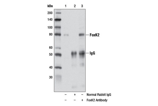 Polyclonal Antibody - FoxK2 Antibody - Immunoprecipitation, Western Blotting, UniProt ID Q01167, Entrez ID 3607 #12008 - Developmental Biology