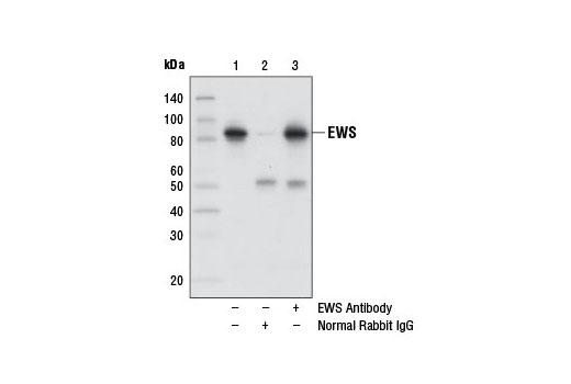 Polyclonal Antibody - EWS Antibody - Immunoprecipitation, Western Blotting, UniProt ID Q01844, Entrez ID 2130 #11910, Chromatin Regulation / Acetylation