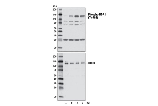 Western blot analysis of extracts from T-47D cells, untreated (-) or treated with collagen (15 μg/ml) for the indicated times, using Phospho-DDR1 (Tyr792) Antibody (upper) or DDR1 (D1G6) XP<sup>®</sup> Rabbit mAb #5583 (lower).
