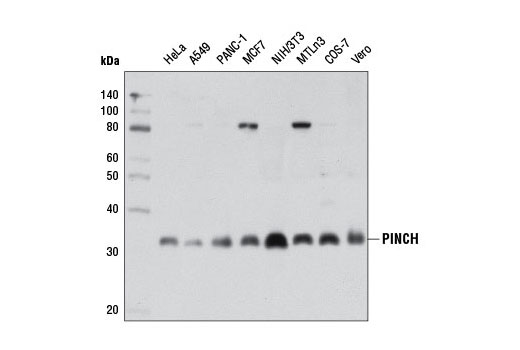 Monoclonal Antibody - PINCH (5G7) Mouse mAb - Western Blotting, UniProt ID P48059, Entrez ID 3987 #11890, Lims1