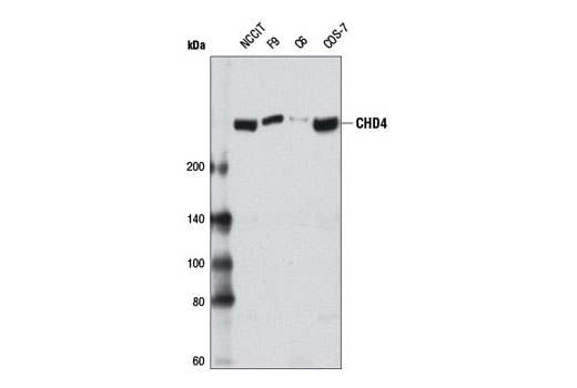 Western blot analysis of extracts from various cell lines using CHD4 (D8B12) Rabbit mAb.