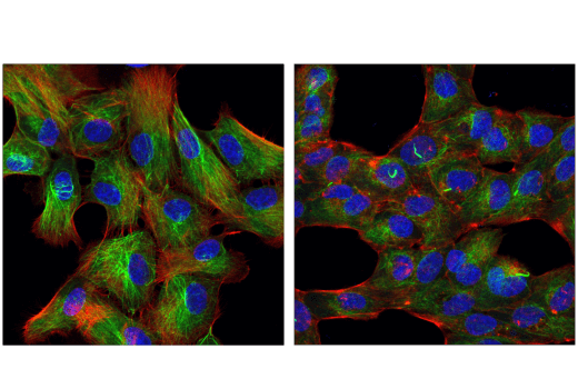 Confocal immunofluorescent analysis of MDCK cells, untreated (left) or treated with cytochalasin D (200 nM, 16 hr; right) using Acetyl-α-Tubulin (Lys40) (6-11B-1) Mouse mAb (green). Actin filaments were labeled with DyLight™ 554 Phalloidin #13054 (red). Blue pseudocolor = DRAQ5® #4084 (fluorescent DNA dye).