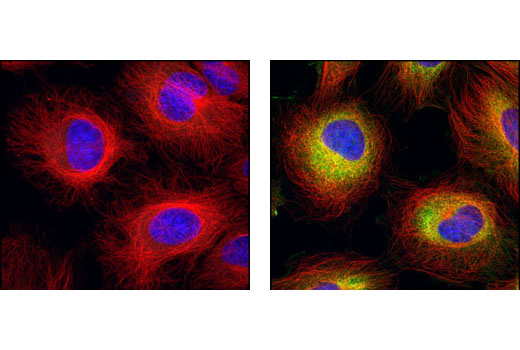 Confocal immunofluorescent analysis of HeLa cells, serum-starved (left) or 20% serum-treated (right), using β-Tubulin (9F3) Rabbit mAb (Alexa Fluor<sup>®</sup> 555 Conjugate) (red) and Phospho-S6 Ribosomal Protein (Ser235/236) (2F9) Rabbit mAb (Alexa Fluor<sup>®</sup> 488 Conjugate) #4854 (green). Blue pseudocolor = DRAQ5<sup>®</sup> #4084 (fluorescent DNA dye).