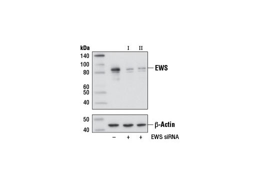 SignalSilence® EWS siRNA I - Transfection, UniProt ID Q01844, Entrez ID 2130 #12175 - Chromatin Regulation / Nuclear Function