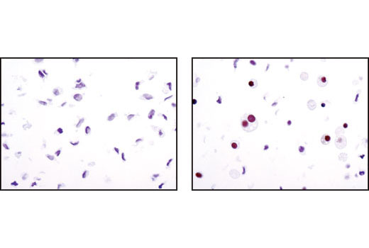 Immunohistochemical analysis of 3T3-L1 cells, undifferentiated (left) or differentiated (right) , using PPARγ (C26H12) Rabbit mAb.