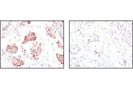 Immunohistochemical analysis of paraffin-embedded human breast carcinoma using BiP (C50B12) Rabbit mAb in the presence of control peptide (left) or BiP Blocking Peptide #1084 (right).