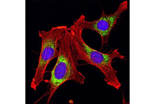 Confocal immunofluorescent analysis of NIH/3T3 cells using PDI Antibody (green) and β-Actin (8H10D10) Mouse mAb #3700 (red). Blue pseudocolor = DRAQ5<sup>®</sup> #4084 (fluorescent DNA dye).