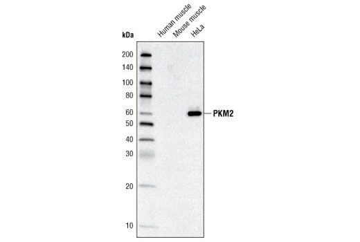 Western blot analysis of extracts from various tissue and cell lysates using PKM2 Antibody.