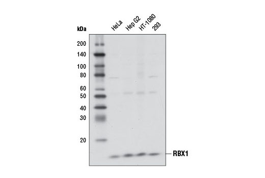 Image 15: Ubiquitin E3 Ligase Complex Antibody Sampler Kit