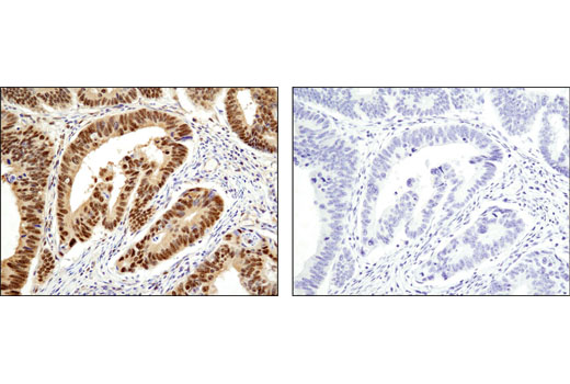 Immunohistochemical analysis of paraffin-embedded human colon carcinoma using RBX1 (D3J5I) Rabbit mAb in the presence of control peptide (left) or antigen-specific peptide (right).