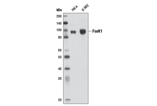 Polyclonal Antibody - FoxK1 Antibody - Immunoprecipitation, Western Blotting, UniProt ID P85037, Entrez ID 221937 #12025 - Developmental Biology