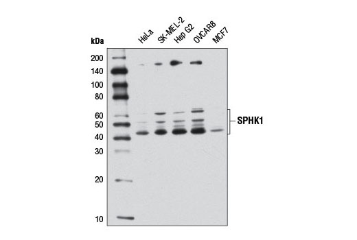 Western blot analysis of extracts from various cell lines using SPHK1 (D1H1L) Rabbit mAb.