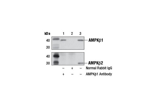Immunoprecipitation of AMPKβ1 from COS-7 cell extracts using Normal Rabbit IgG #2729 (lane 2) or AMPKβ1 Antibody (lane 1). Lane 3 is 10% input. Western blot analysis was performed using AMPKβ1 Antibody (upper) or AMPKβ2 Antibody #4148 (lower).