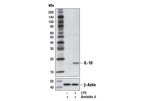 Western blot analysis of extracts from purified CD14<sup>+</sup> human peripheral blood mononuclear cells, untreated (-) or treated with LPS (100 ng/mL, 16 hr; +), using IL-10 (D13A11) XP<sup>®</sup> Rabbit mAb (upper) or β-Actin (D6A8) Rabbit mAb #8457 (lower). Brefeldin A #9972 (300 ng/mL) was added to cells after 1 hr of LPS stimulation.