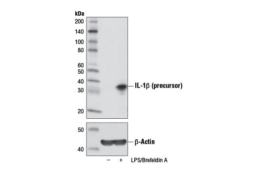 Western blot analysis of extracts from Raw 264.7 cells, untreated (-) or treated with Brefeldin A #9972 (300 ng/mL, last 3 hr of stimulation; +) and LPS (100 ng/mL, 6 hr; +), using IL-1β (3A6) Mouse mAb (upper) or β-Actin (D6A8) Rabbit mAb #8457 (lower).