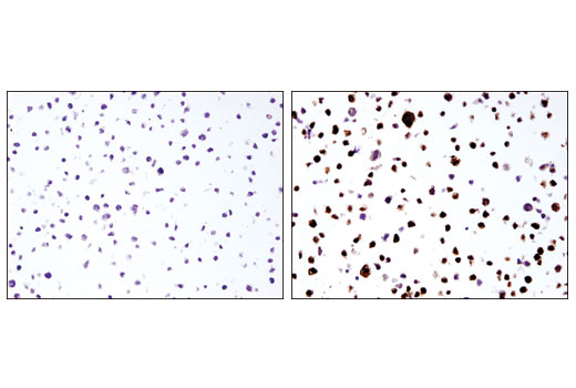 Immunohistochemistry Image 3: IL-1β (3A6) Mouse mAb