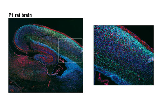 Confocal immunofluorescent analysis of P1 rat brain using Brn2 (D7H3) Rabbit mAb (green). Actin filaments were labeled with DY-554 phalloidin (red). Blue pseudocolor = DRAQ5® #4084 (fluorescent DNA dye). Gated area shown at 10X magnification on right.