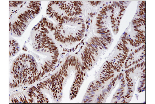 colon:</p><p>Immunohistochemical analysis of paraffin-embedded human colon carcinoma using BRM (D9E8B) XP(R) Rabbit mAb.