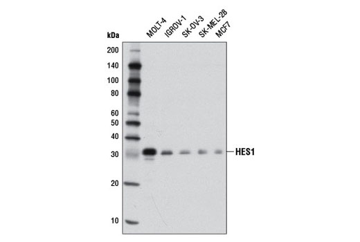 Western blot analysis of extracts from various cell lines using HES1 (D6P2U) Rabbit mAb.