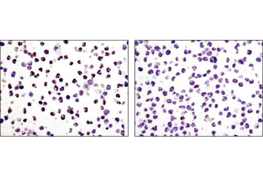 Immunohistochemical analysis of paraffin-embedded CUTLL1 cell pellets, control (left) or Compound E-treated (right), using HES1 (D6P2U) Rabbit mAb.
