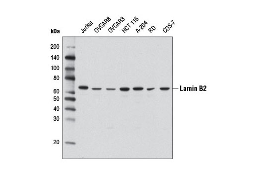 Western blot analysis of extracts from various cell lines using Lamin B2 (D8P3U) Rabbit mAb.