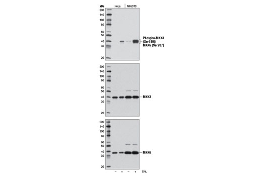 Western blot analysis of extracts from HeLa and NIH/3T3 cells, untreated (-) or treated with TPA #4174 (200 nM, 15 min; +), using Phospho-MKK3 (Ser189)/MKK6 (Ser207) (D8E9) Rabbit mAb (upper), MKK3 (D4C3) Rabbit mAb #8535 (middle), or MKK6 (D31D1) Rabbit mAb #8550 (lower).