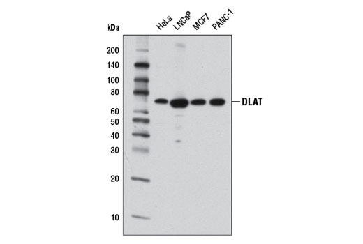 Western blot analysis of extracts from various cell lines using DLAT (4A4-B6-C10) Mouse mAb.